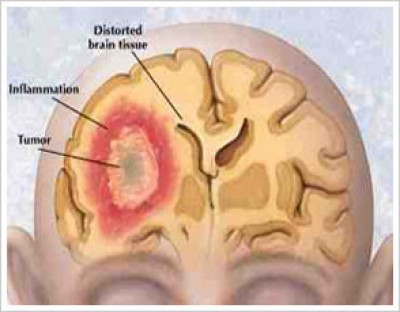 Hydrocephalus in adults life expectancy